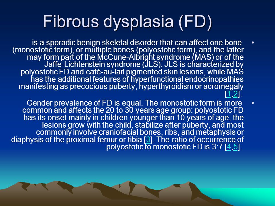 Fibrous dysplasia (FD) is a sporadic benign skeletal disorder that can affect one bone (monostotic form), or multiple bones (polyostotic form), and the latter may form part of the McCune-Albright syndrome (MAS) or of the Jaffe-Lichtenstein syndrome (JLS).