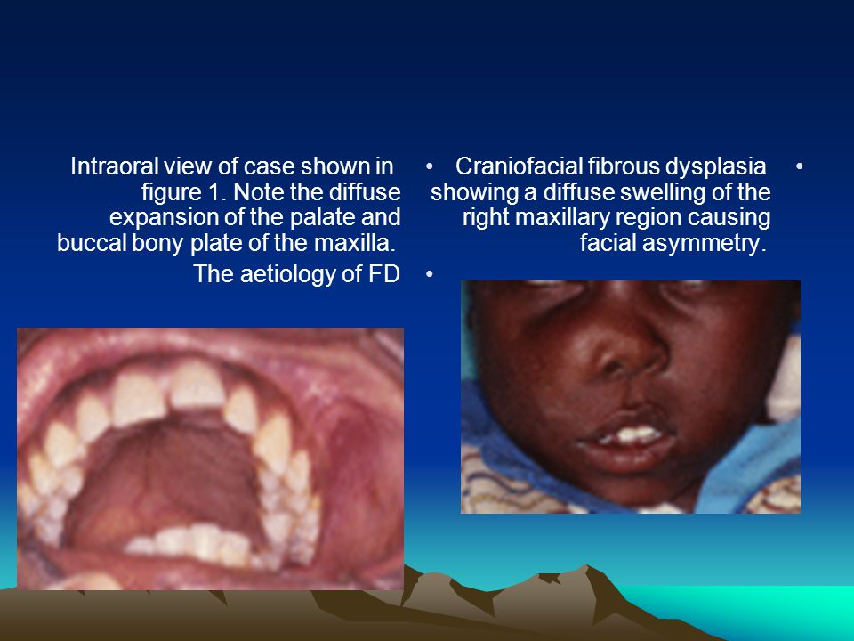 Intraoral view of case shown in figure 1.
