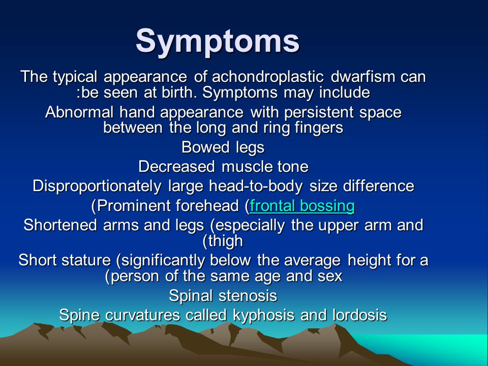 Symptoms The typical appearance of achondroplastic dwarfism can be seen at birth.