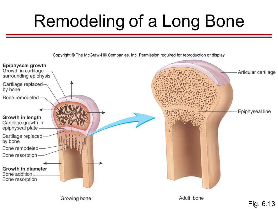 Bone Fractures (Breaks) Bone fractures are classified by: –The position of the bone ends after fracture –The completeness of the break –The orientation of the bone to the long axis –Whether or not the bone ends penetrate the skin