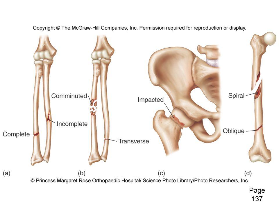 Bone Repair Fig. 6.14