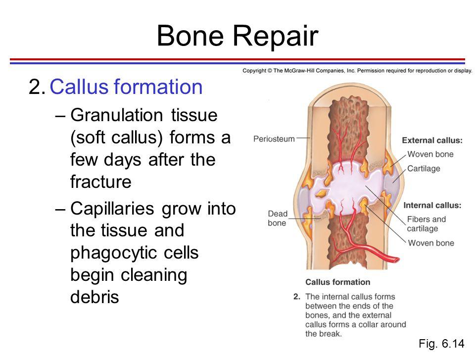 Bone Repair 2.Callus formation cont.