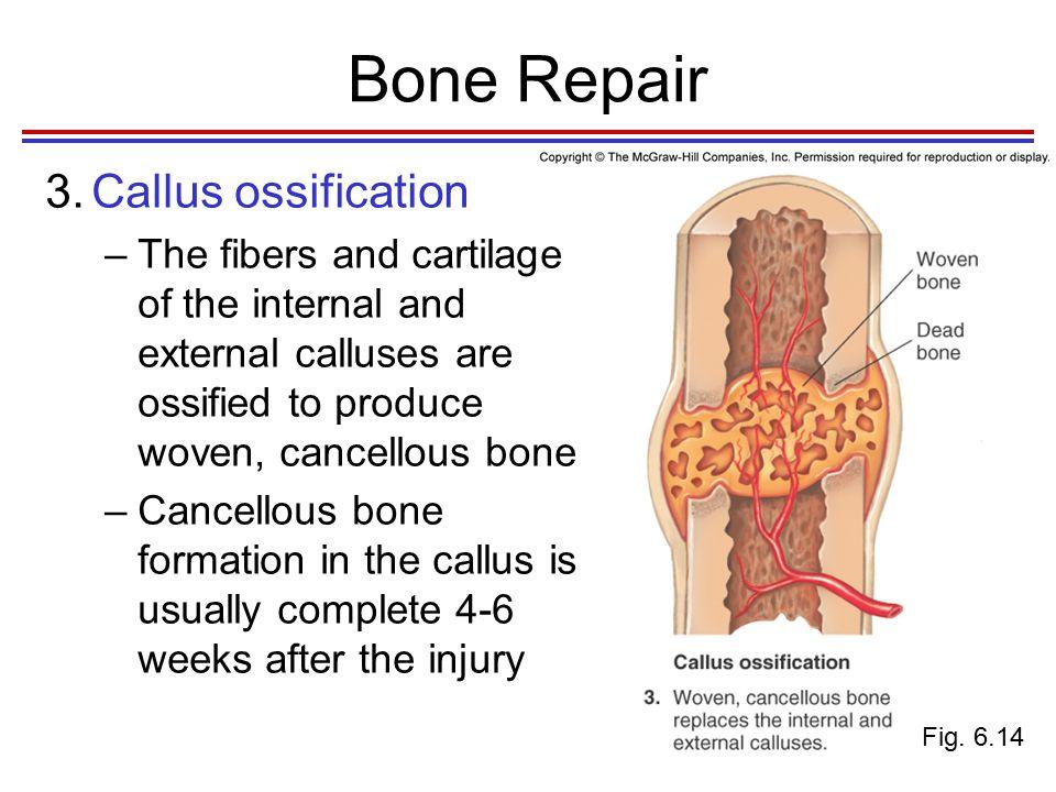 Bone Repair 4.