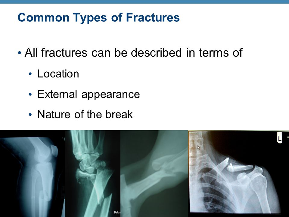 Common Types of Fractures All fractures can be described in terms of Location External appearance Nature of the break