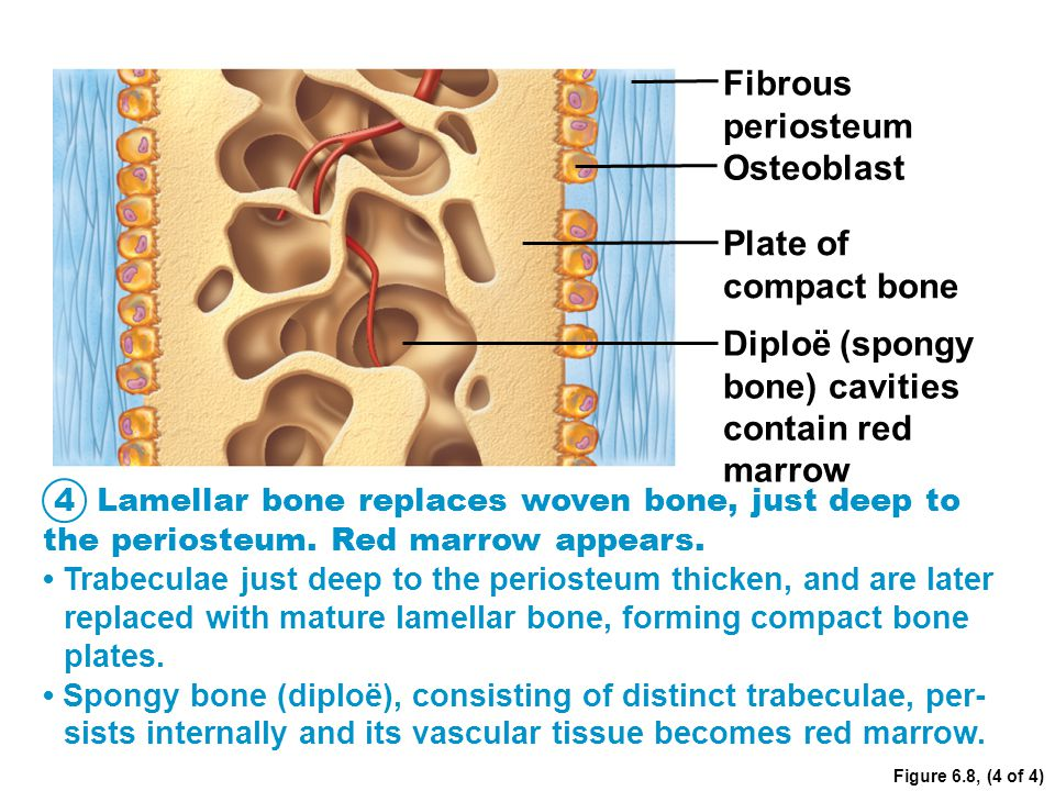 Figure 6.8, (4 of 4) Fibrous periosteum Osteoblast Plate of compact bone Diploë (spongy bone) cavities contain red marrow Lamellar bone replaces woven
