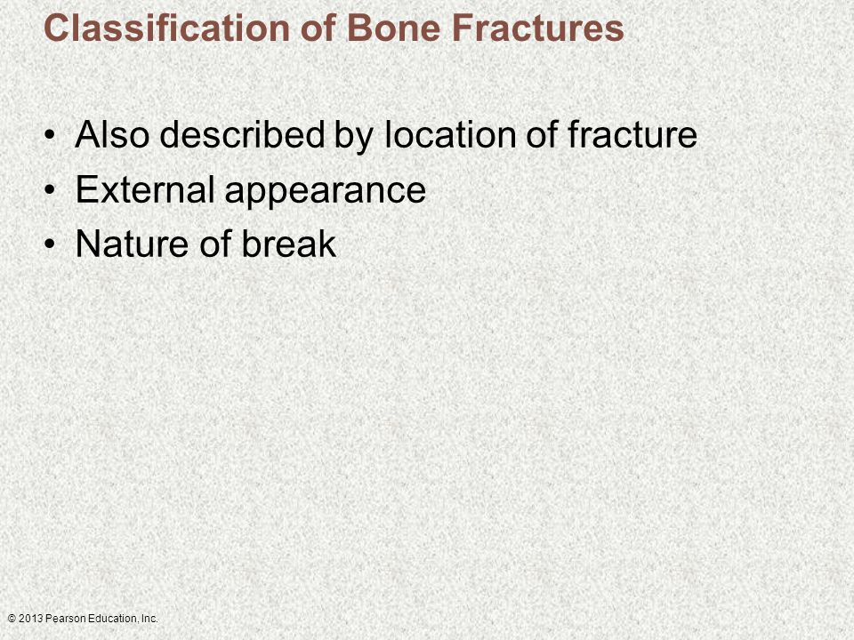 © 2013 Pearson Education, Inc. Classification of Bone Fractures Also described by location of fracture External appearance Nature of break