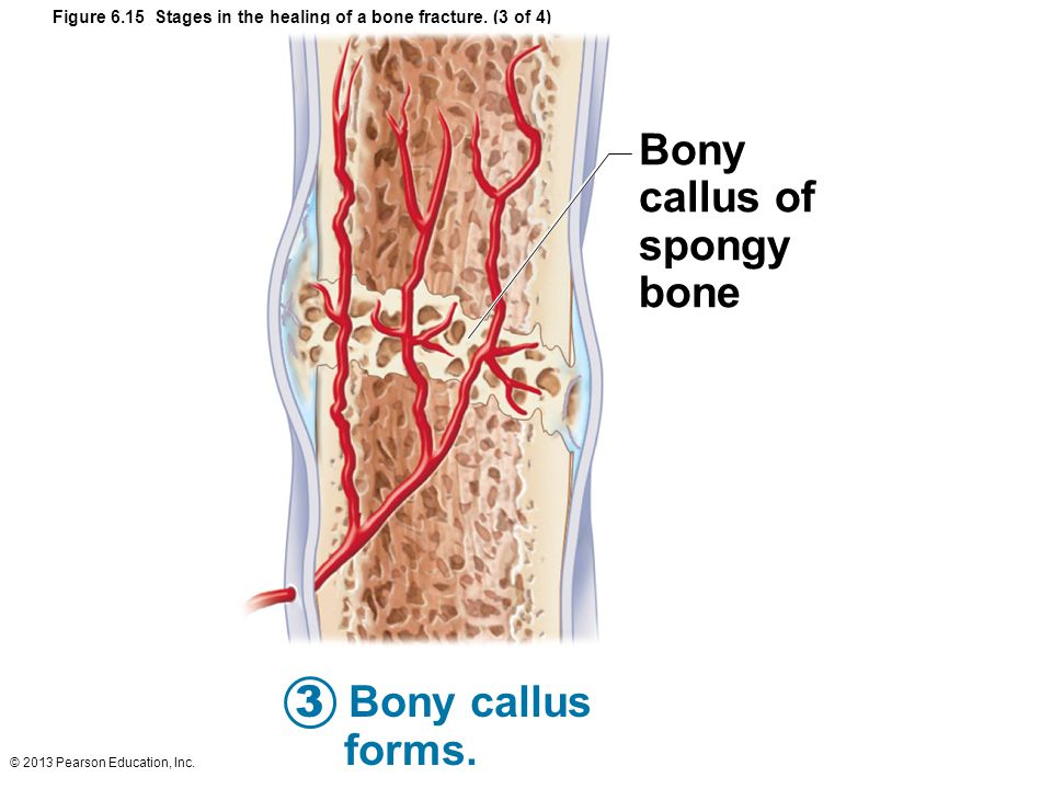 © 2013 Pearson Education, Inc. Figure 6.15 Stages in the healing of a bone fracture. (3 of 4) Bony callus of spongy bone 3 Bony callus forms.
