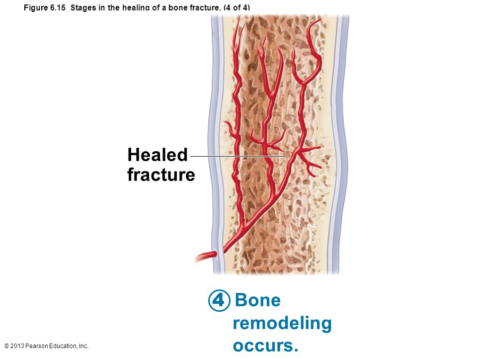 © 2013 Pearson Education, Inc. Figure 6.15 Stages in the healing of a bone fracture.