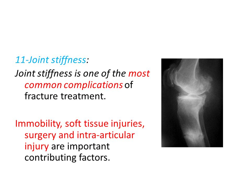 11-Joint stiffness: Joint stiffness is one of the most common complications of fracture treatment.