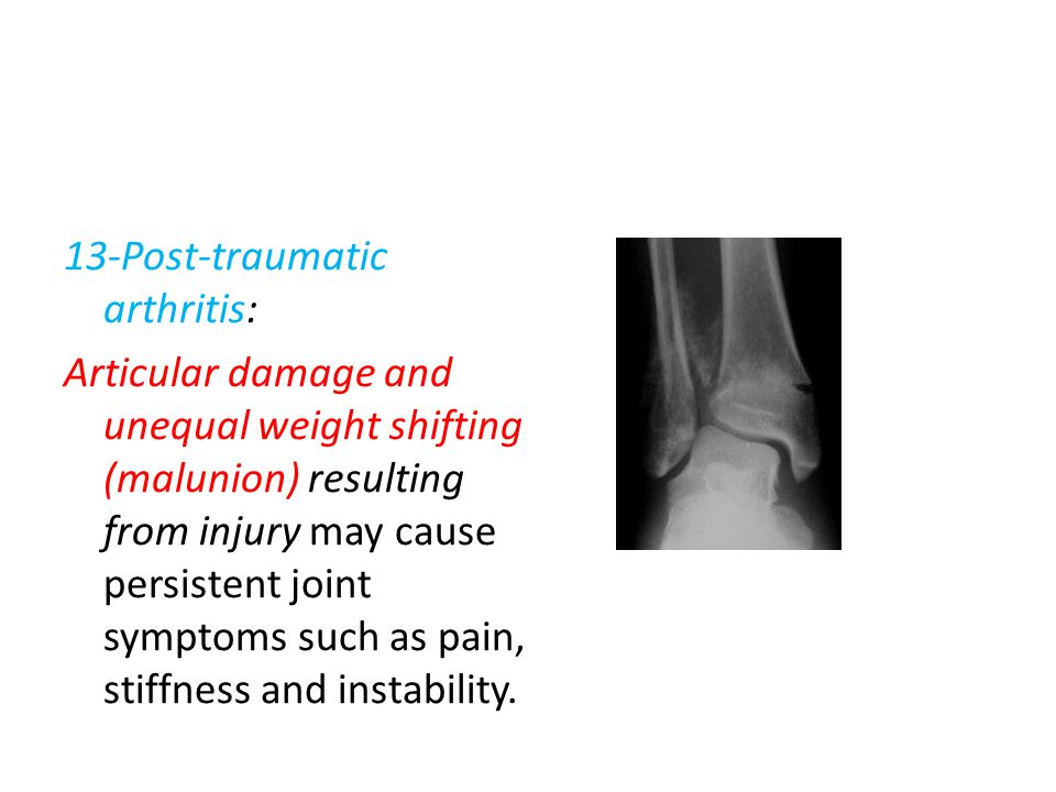 13-Post-traumatic arthritis: Articular damage and unequal weight shifting (malunion) resulting from injury may cause persistent joint symptoms such as pain, stiffness and instability.