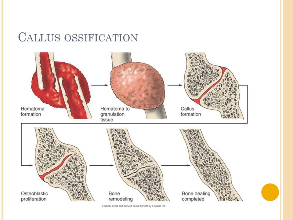 C ALLUS OSSIFICATION