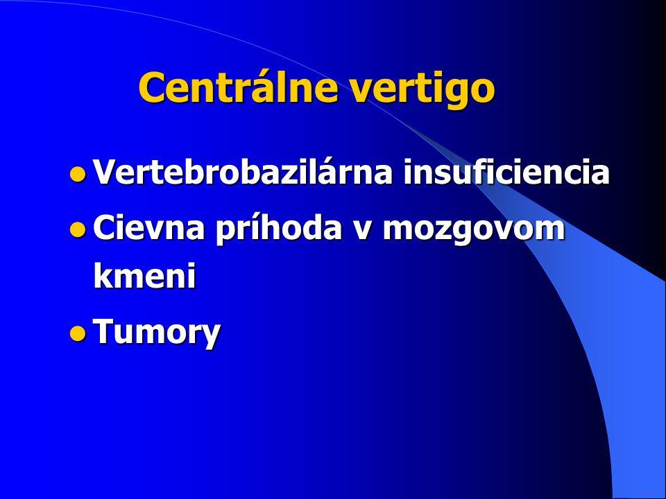 Centrálne vertigo Vertebrobazilárna insuficiencia Vertebrobazilárna insuficiencia Cievna príhoda v mozgovom kmeni Cievna príhoda v mozgovom kmeni Tumory Tumory