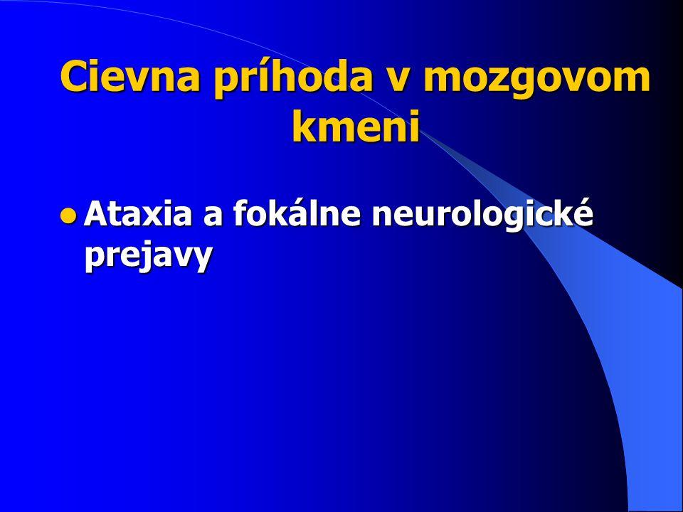 Cievna príhoda v mozgovom kmeni Ataxia a fokálne neurologické prejavy Ataxia a fokálne neurologické prejavy