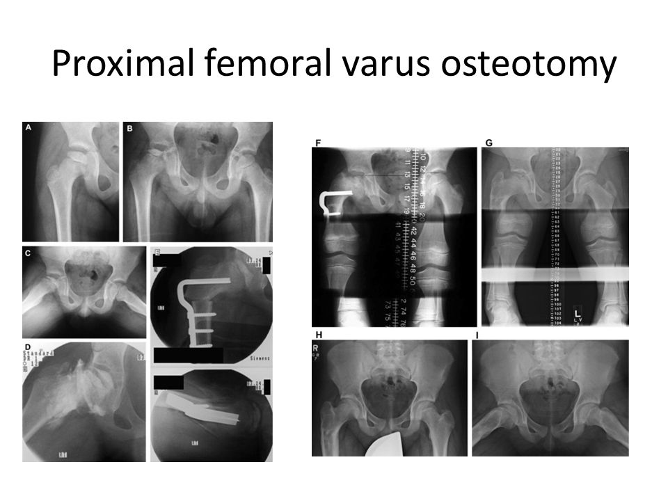 Proximal femoral varus osteotomy