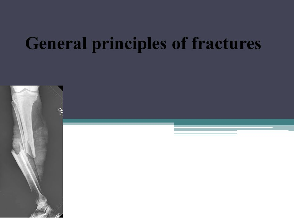 General principles of fractures