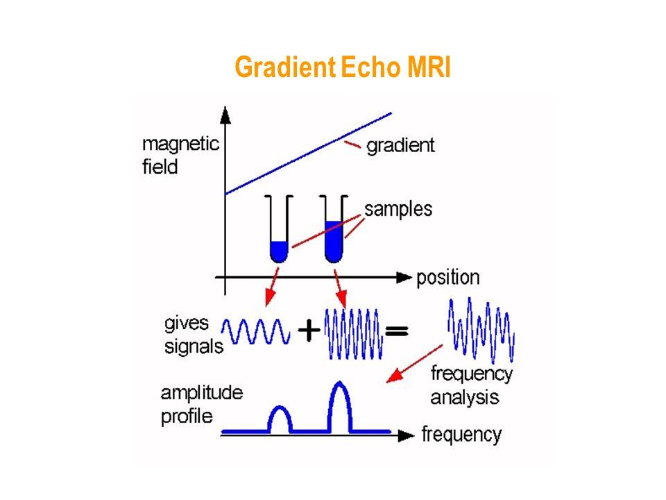 Gradient Echo MRI