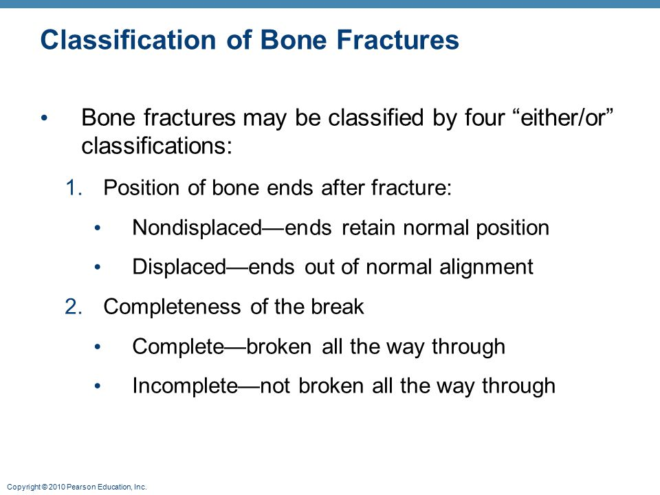 "Copyright © 2010 Pearson Education, Inc. Classification of Bone Fractures Bone fractures may be classified by four ""either/or"" classifications: 1.Posi"