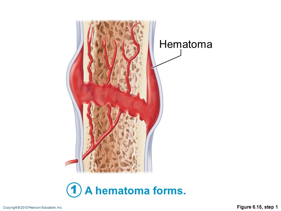 Copyright © 2010 Pearson Education, Inc. Figure 6.15, step 1 A hematoma forms. 1 Hematoma