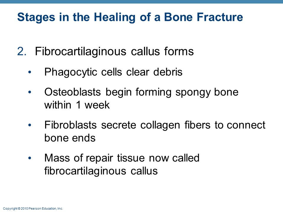 Copyright © 2010 Pearson Education, Inc. Stages in the Healing of a Bone Fracture 2.Fibrocartilaginous callus forms Phagocytic cells clear debris Oste