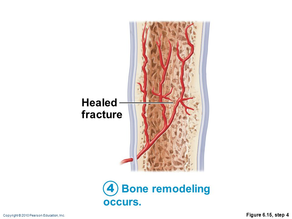 Copyright © 2010 Pearson Education, Inc. Figure 6.15, step 4 Bone remodeling occurs.