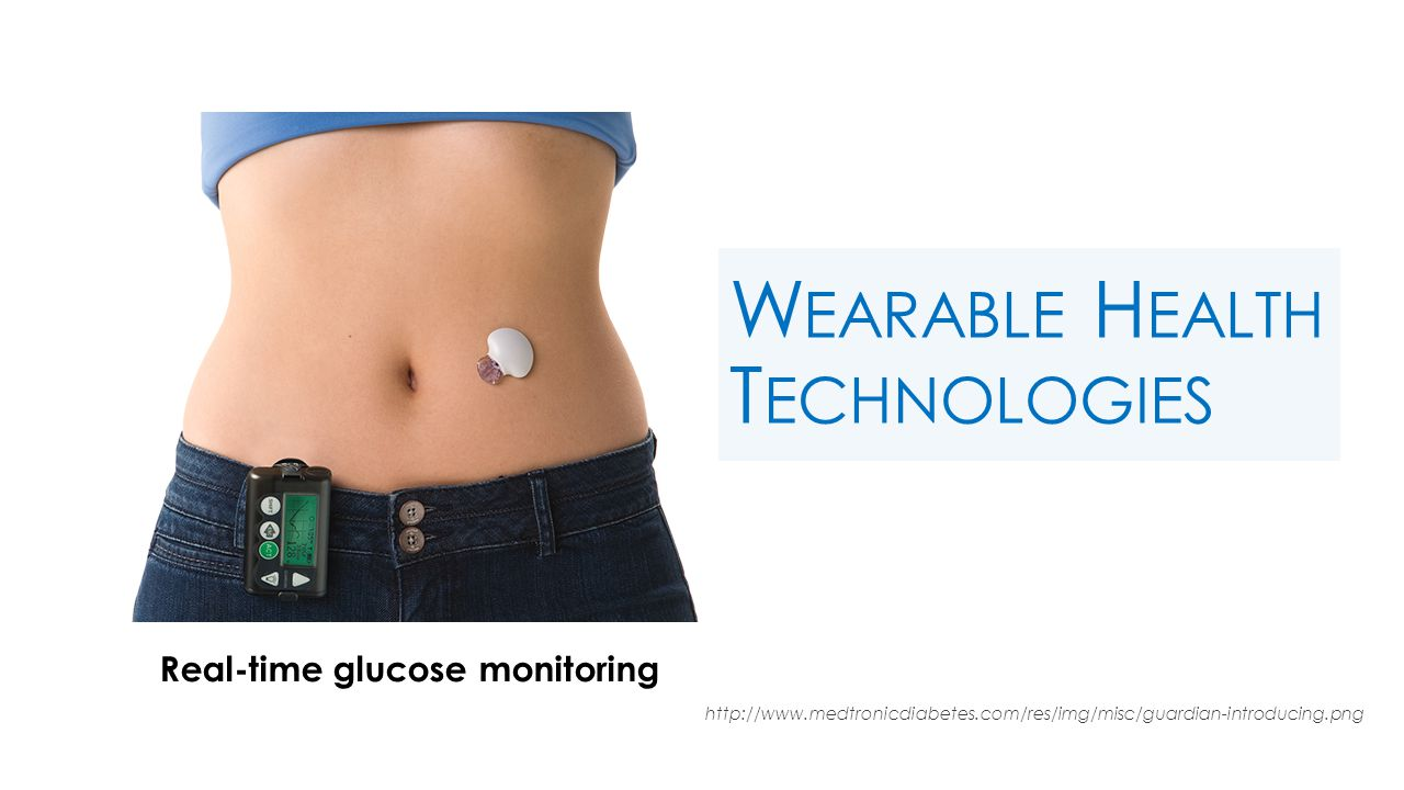 W EARABLE H EALTH T ECHNOLOGIES http://www.medtronicdiabetes.com/res/img/misc/guardian-introducing.png Real-time glucose monitoring