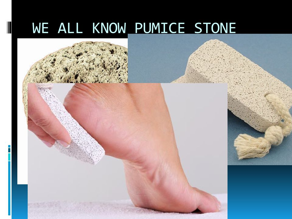 WE ALL KNOW PUMICE STONE