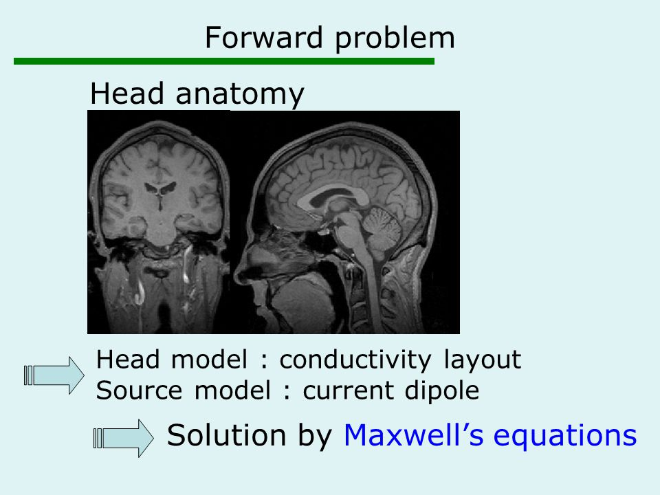Head anatomy Solution by Maxwell's equations Head model : conductivity layout Source model : current dipole Forward problem