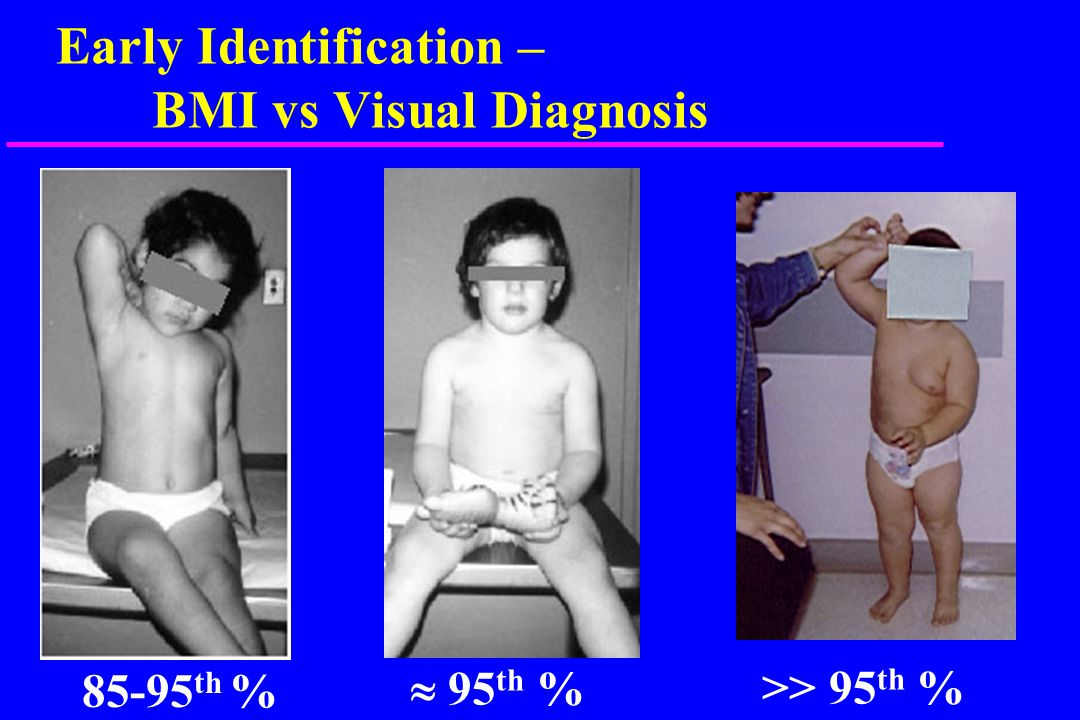 Referral Boys: 2 to 20 years BMI Use of BMI: Progression of Excessive Weight Gain 3 yr old boy
