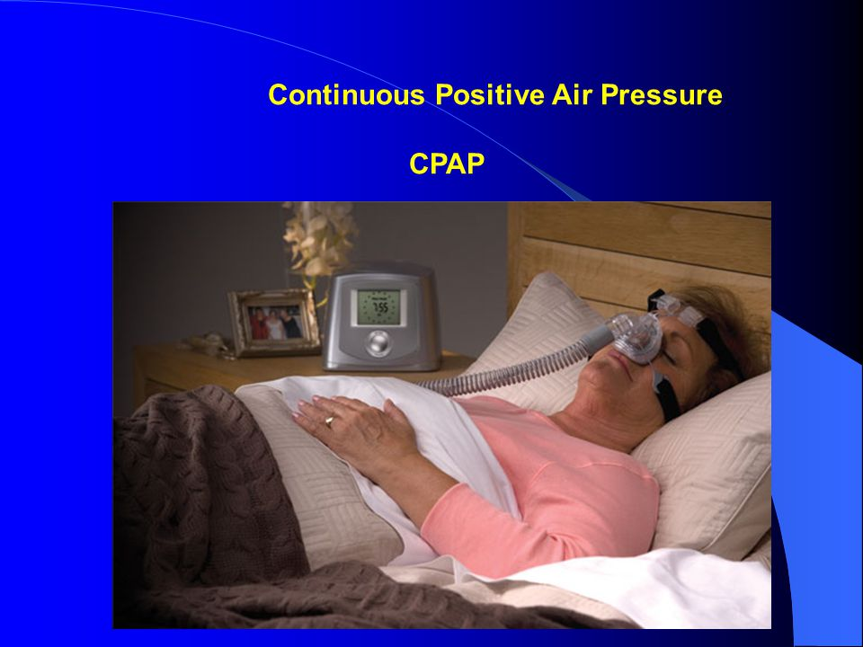Continuous Positive Air Pressure CPAP