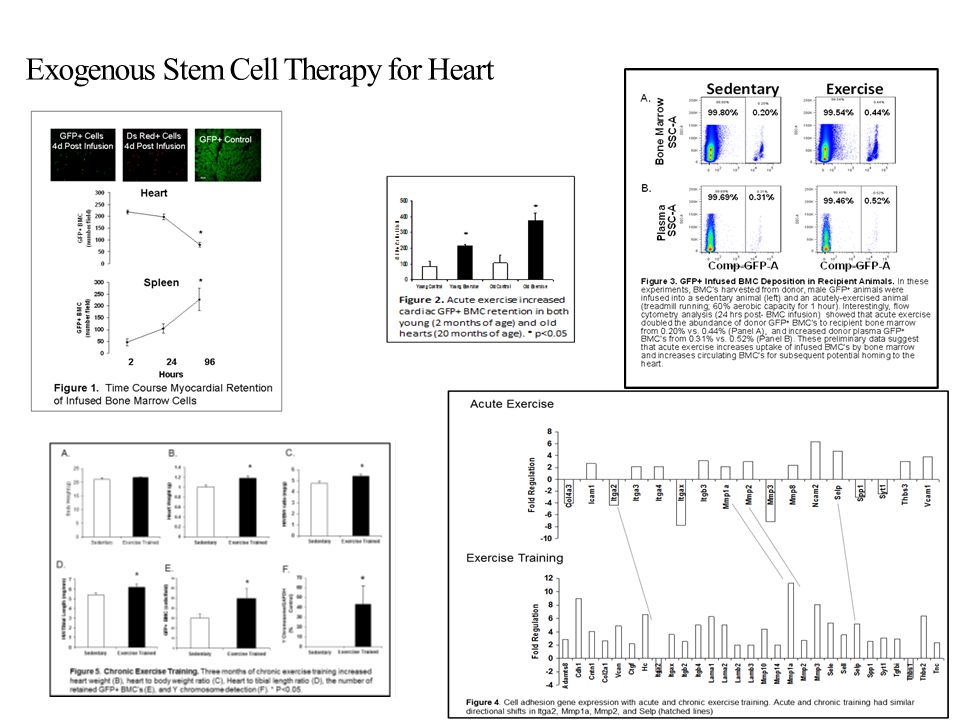 Exogenous Stem Cell Therapy for Heart