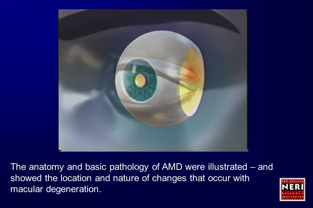 The anatomy and basic pathology of AMD were illustrated – and showed the location and nature of changes that occur with macular degeneration.