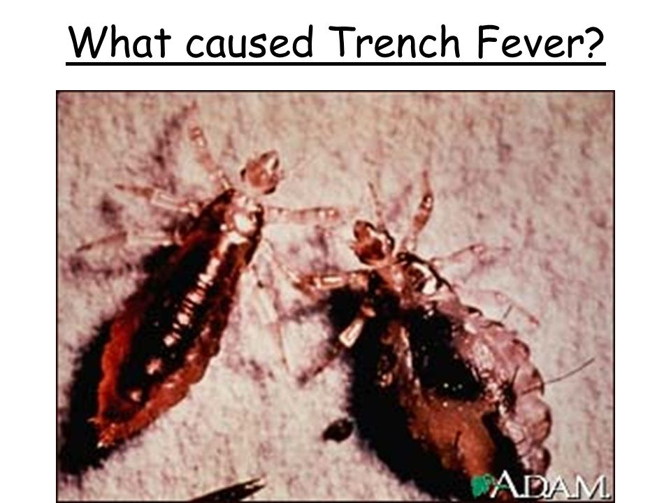 What caused Trench Fever