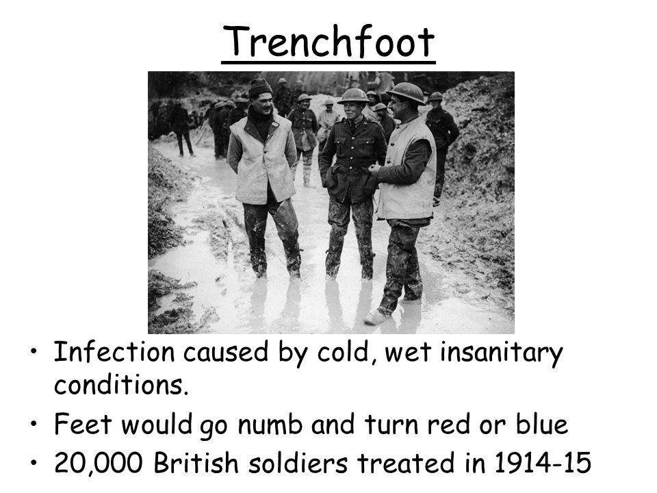 Trenchfoot Infection caused by cold, wet insanitary conditions.