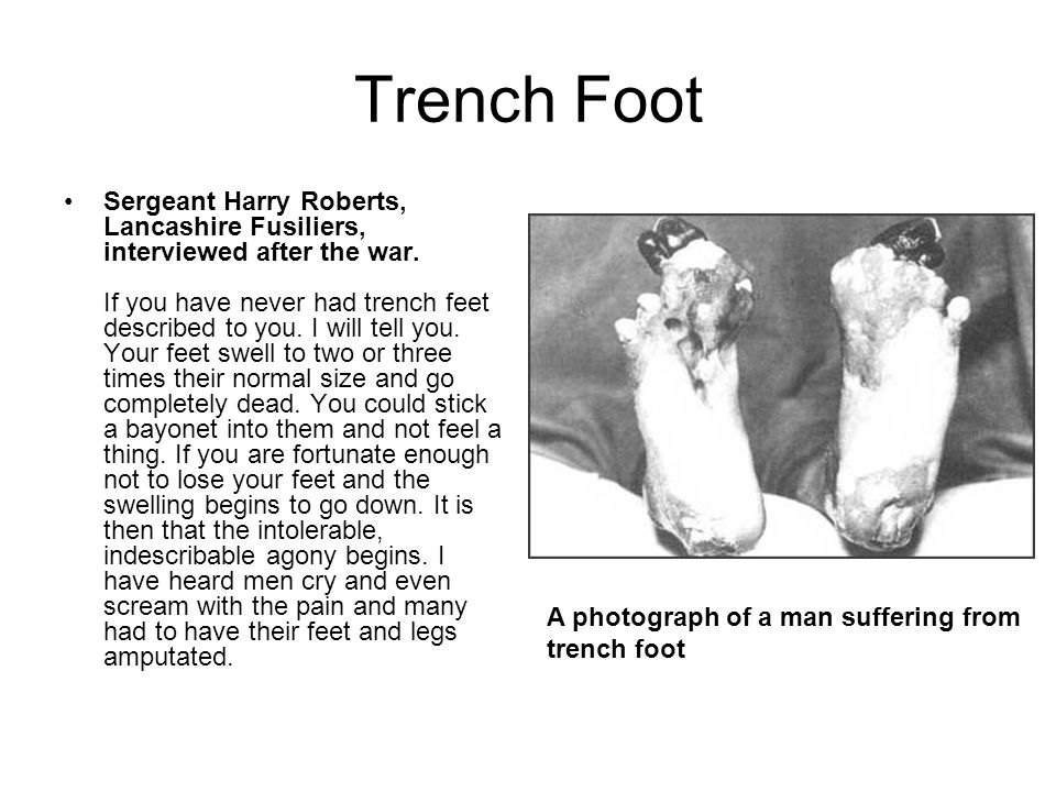 Trench Foot Sergeant Harry Roberts, Lancashire Fusiliers, interviewed after the war. If you have never had trench feet described to you. I will tell y