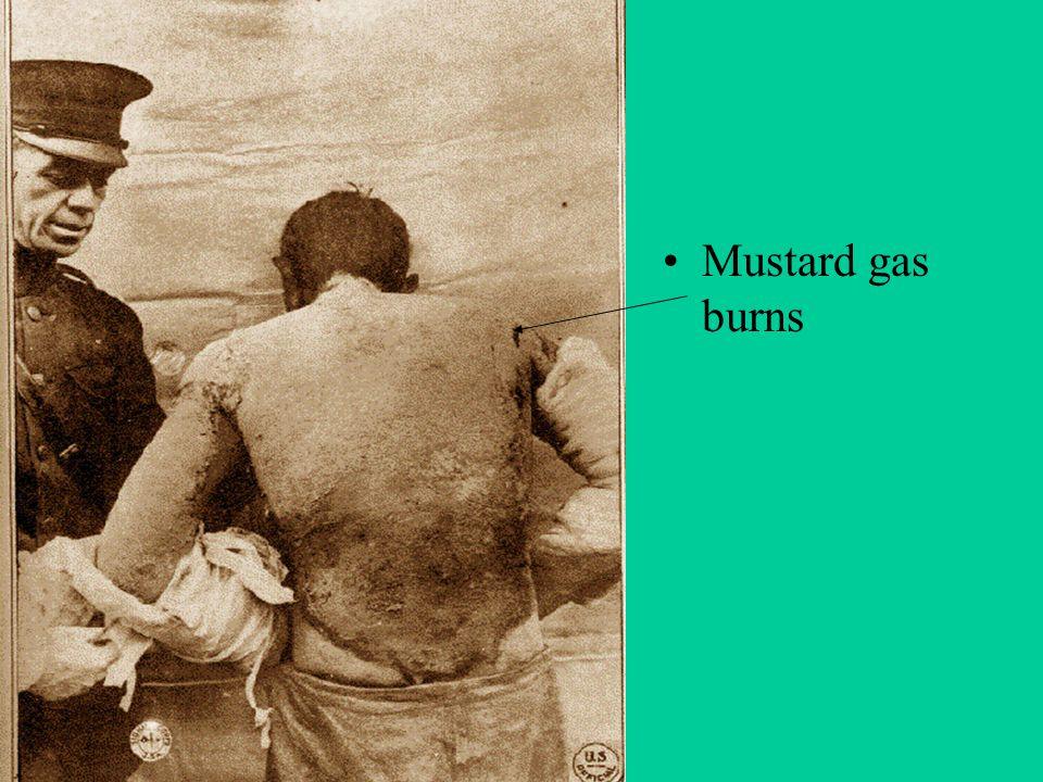 Mustard gas burns