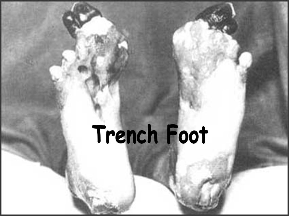 More Trench Foot ► infection of the feet caused by cold, wet and insanitary conditions.