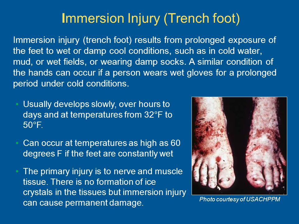 Immersion Injury (Trench foot) Immersion injury (trench foot) results from prolonged exposure of the feet to wet or damp cool conditions, such as in c