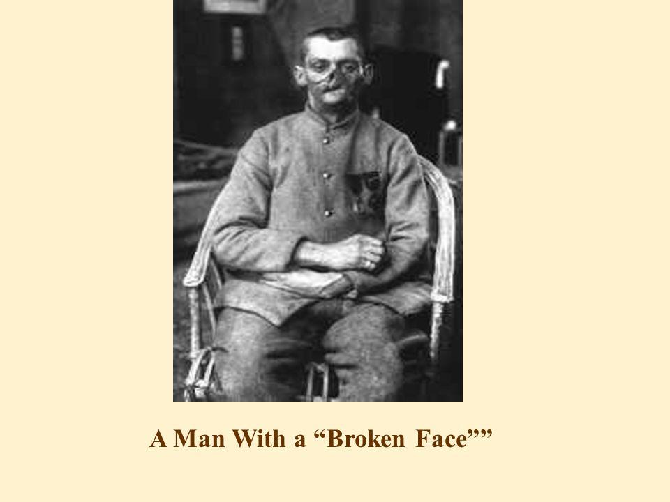 A Man With a Broken Face