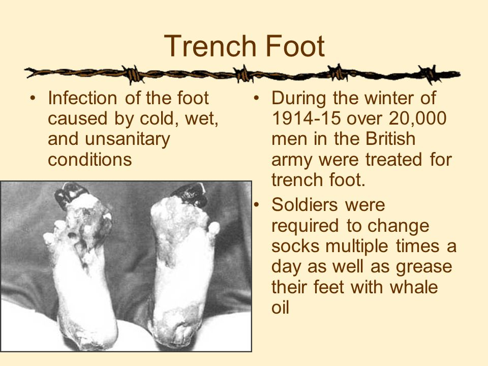 Trench Foot Infection of the foot caused by cold, wet, and unsanitary conditions During the winter of 1914-15 over 20,000 men in the British army were treated for trench foot.