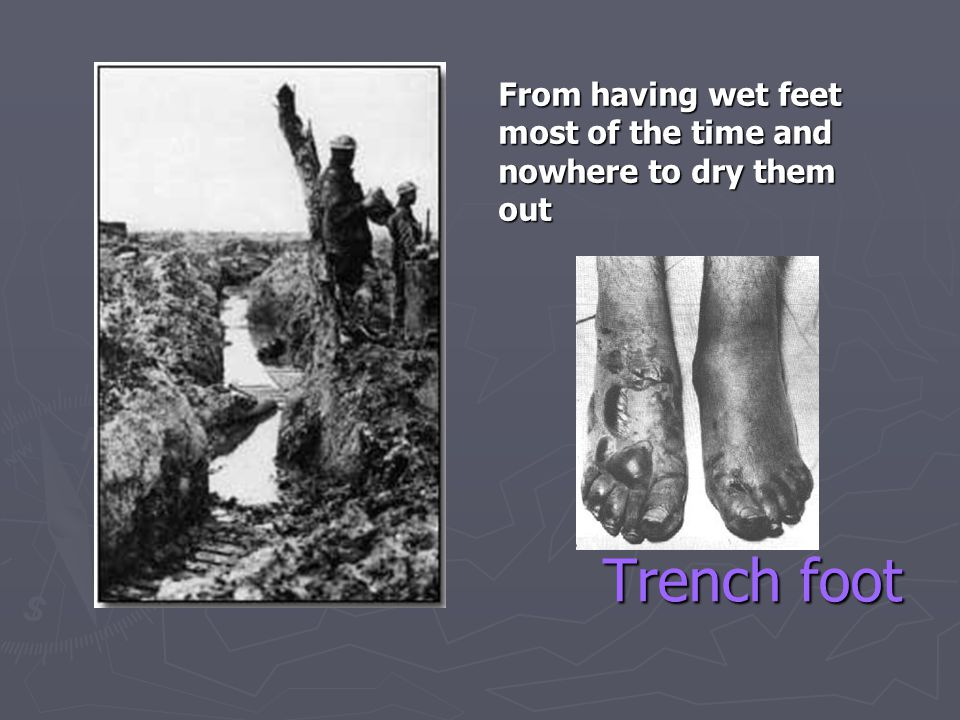 Trench foot From having wet feet most of the time and nowhere to dry them out