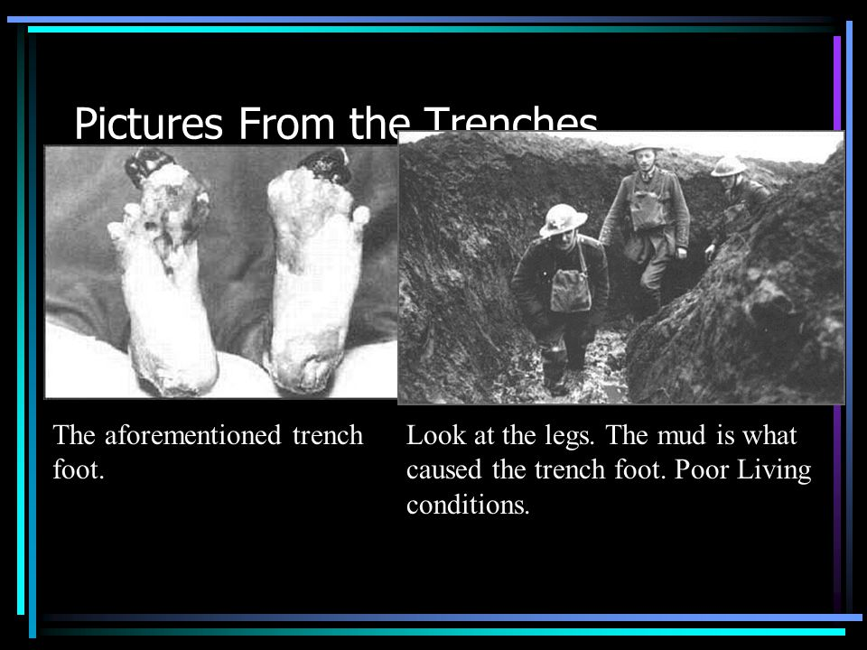 Pictures From the Trenches The aforementioned trench foot. Look at the legs. The mud is what caused the trench foot. Poor Living conditions.