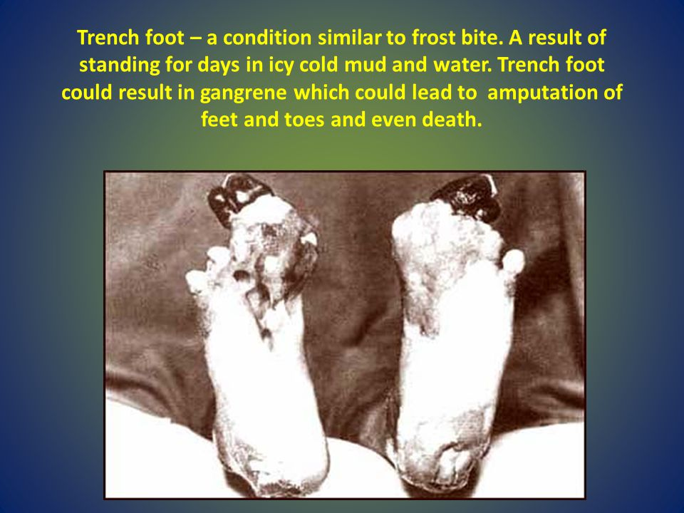 Trench foot – a condition similar to frost bite. A result of standing for days in icy cold mud and water. Trench foot could result in gangrene which c