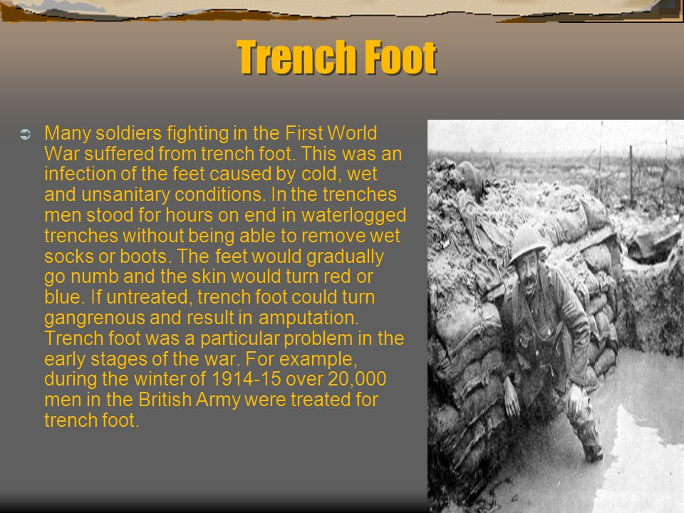 Trench Foot  Many soldiers fighting in the First World War suffered from trench foot.