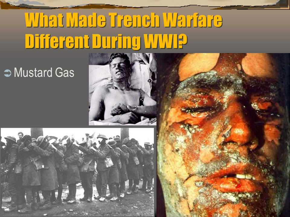 What Made Trench Warfare Different During WWI?  Mustard Gas