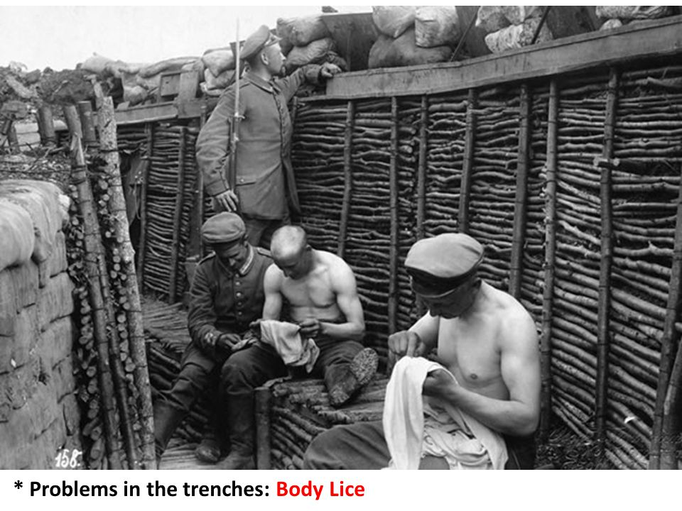 * Problems in the trenches: Body Lice
