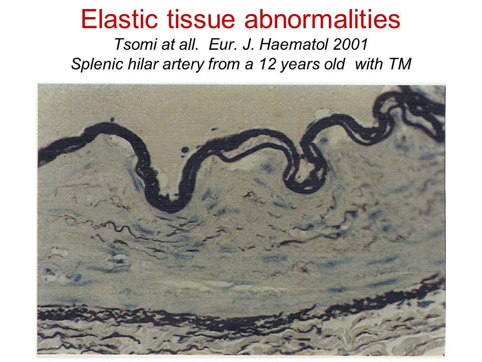 Elastic tissue abnormalities Tsomi at all. Eur. J.