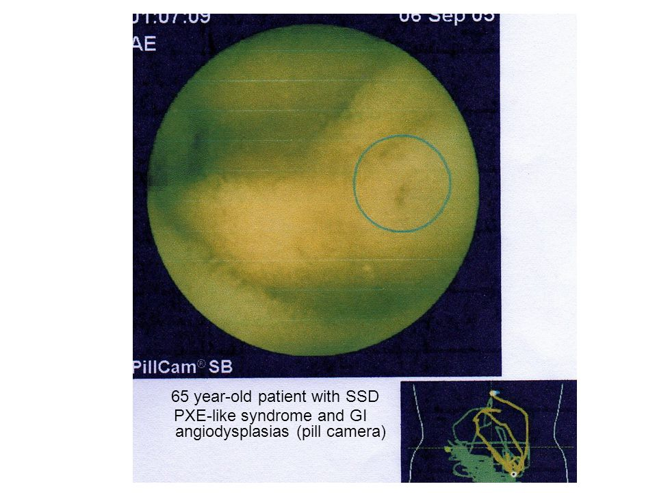 65 year-old patient with SSD PXE-like syndrome and GI angiodysplasias (pill camera)