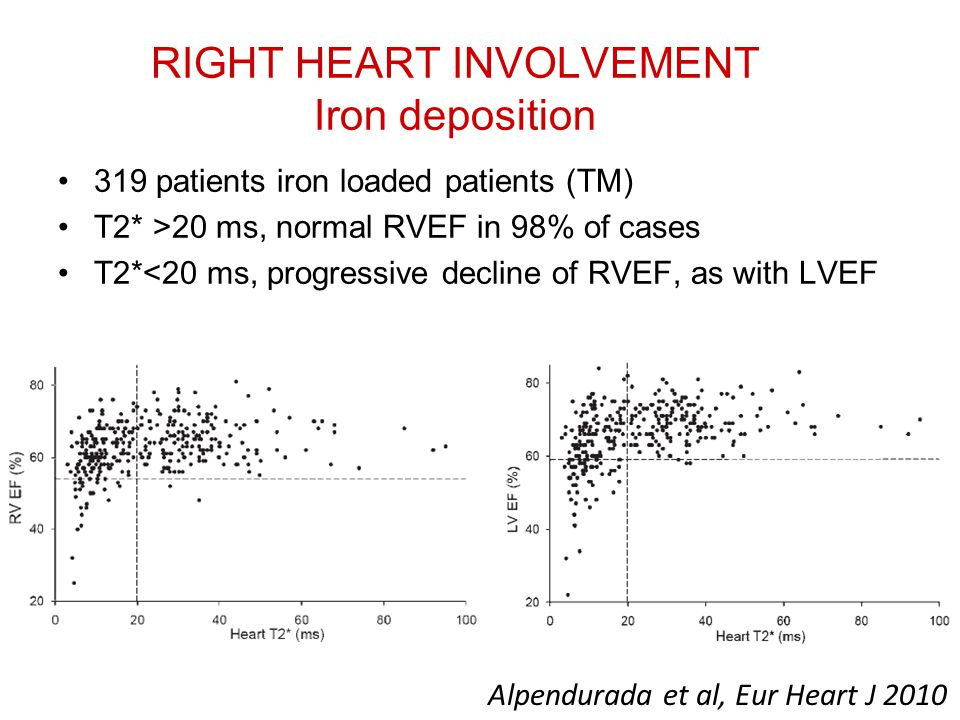 RIGHT HEART INVOLVEMENT Iron deposition 319 patients iron loaded patients (TM) T2* >20 ms, normal RVEF in 98% of cases T2*<20 ms, progressive decline of RVEF, as with LVEF Alpendurada et al, Eur Heart J 2010