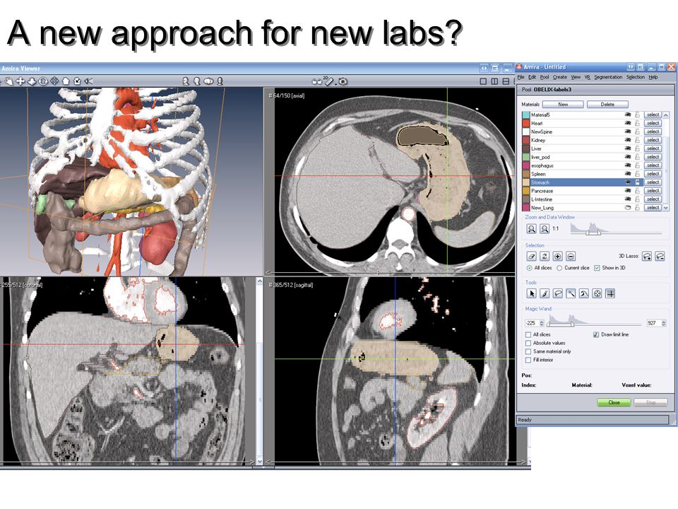 A new approach for new labs