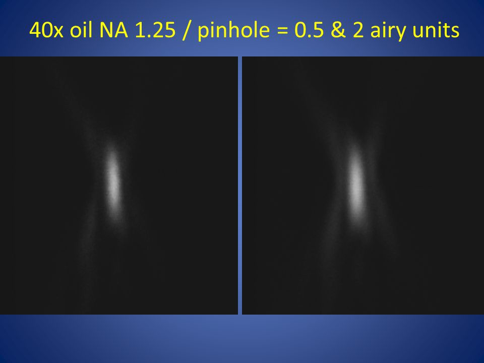 40x oil NA 1.25 / pinhole = 0.5 & 2 airy units